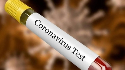 Two Bank Officers, among Seven Test Positive for Covid-19